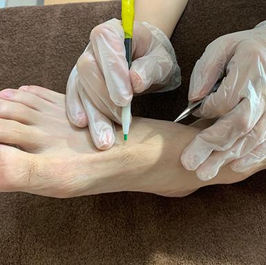 ニードル脱毛両足(足の甲・指含む)脱毛施術イメージ