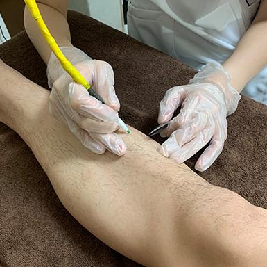 ニードル脱毛両ひざ下(足の甲・指含む)脱毛施術イメージ
