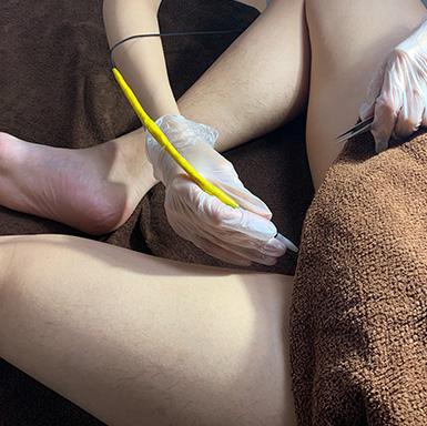 ニードル脱毛Iライン(睾丸・陰茎周り・股の間)脱毛施術イメージ