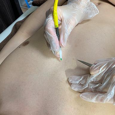 ニードル脱毛胸毛脱毛施術イメージ
