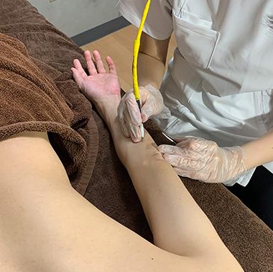 ニードル脱毛両腕(手の甲・指含む)脱毛施術イメージ