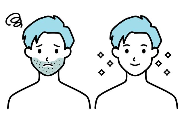 メンズ脱毛で人気の髭脱毛