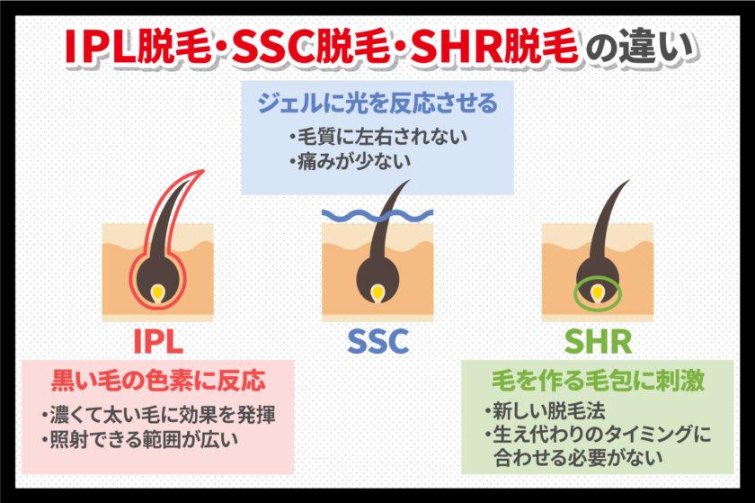 IPL脱毛とSSC脱毛・SHR脱毛の違い