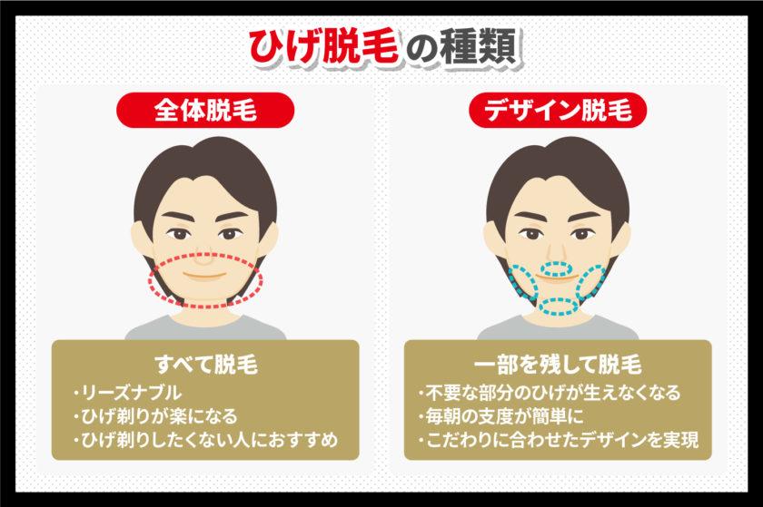 ひげ脱毛の種類について解説する